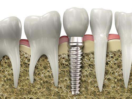 cấy ghép implant có tốt không 2
