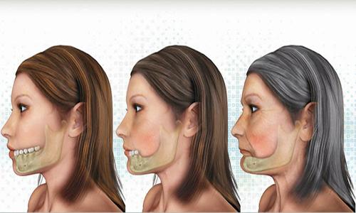 có nên trồng răng Implant không 2