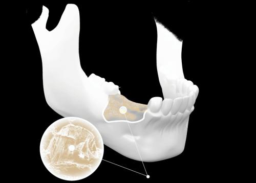 làm răng Implant giá bao nhiêu tiền 3