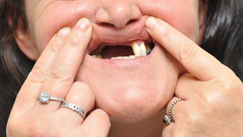 Làm răng sứ implant bao nhiêu tiền