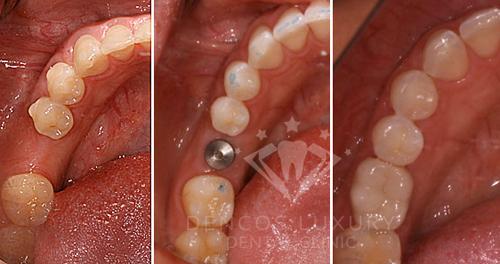 Làm răng sứ implant bao nhiêu tiền 3