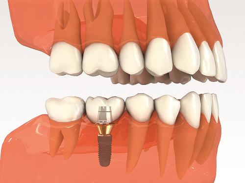 Quy trình cấy ghép implant được thực hiện như thế nào 3