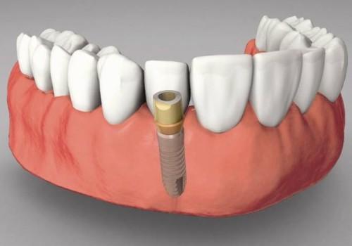 Chi phí trồng răng implant khoảng bao nhiêu hiện nay 2