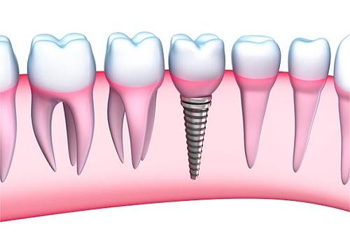 cắm răng implant ở đâu uy tín