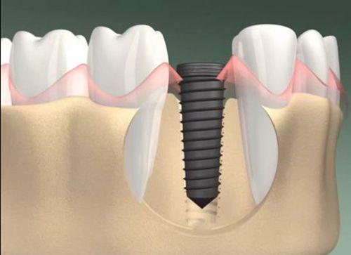 cấy ghép răng có ảnh hưởng gì không