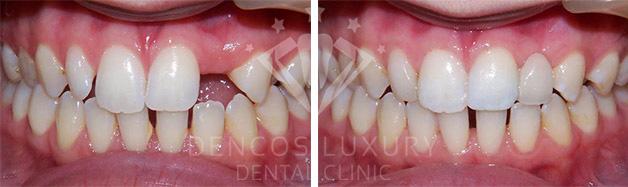 Cấy ghép răng implant ở đâu an toàn 4