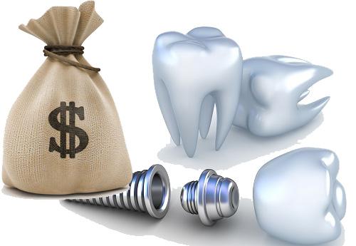 chi phí làm răng implant là bao nhiêu