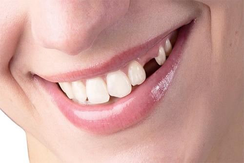 chi phí làm răng Implant 3