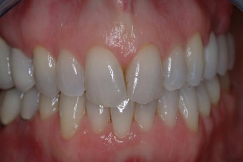 làm răng implant tại hà nội 2