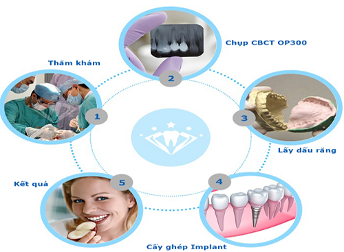 làm răng implant tại hà nội