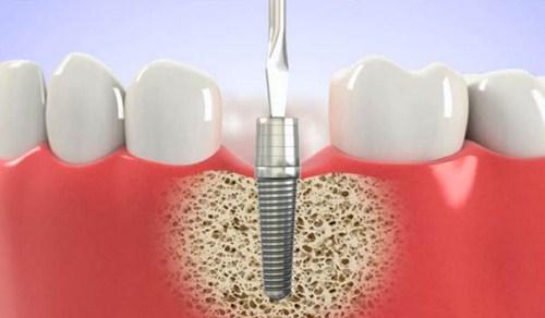 làm răng implant tại hà nội 4