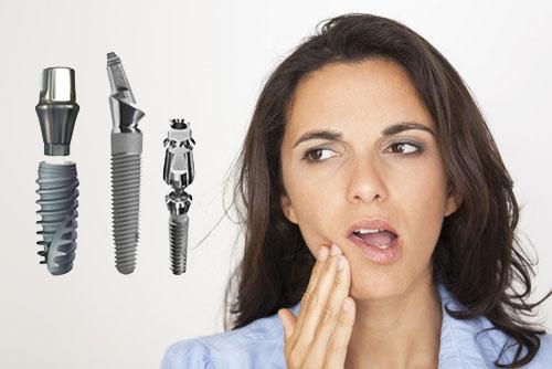 ghép răng implant có đau không
