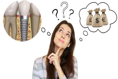 giá trồng răng implant