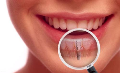 giá trồng răng implant là bao nhiêu 3