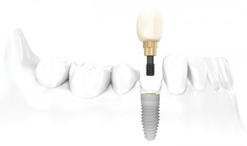 làm răng implant ở đâu an toàn