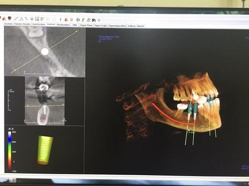 Địa chỉ trồng răng implant nào uy tín tại Hà Nội 3