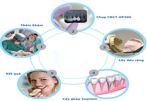 quy trình cắm răng Implant