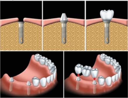 Kỹ thuật cấy ghép răng implant hiện đại