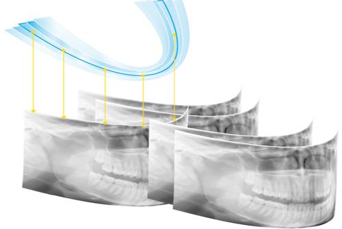 trồng răng bằng phương pháp implant 2