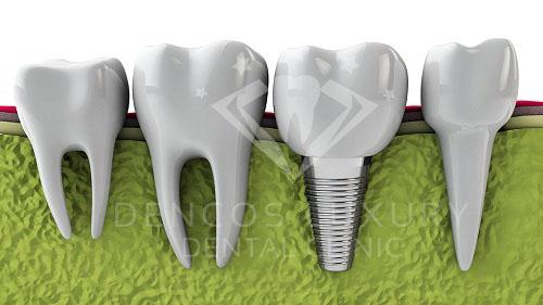 Cấy ghép implant có đau không thưa bác sĩ?