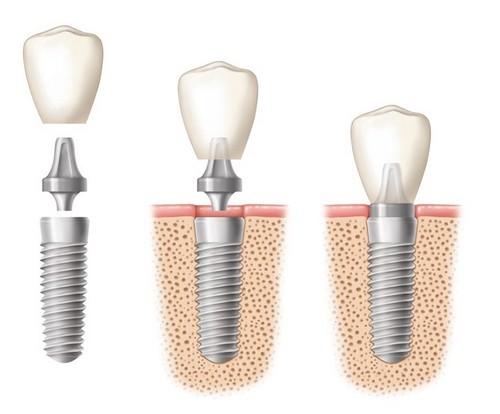 Cấy ghép implant ở đâu hiệu quả