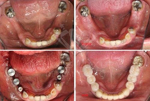 Cấy ghép răng implant ở đâu an toàn 5