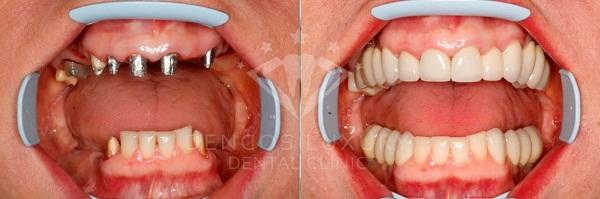 Cùng tìm hiểu giá trồng răng implant hiện nay 2