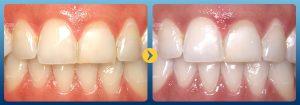 Răng ố vàng 2