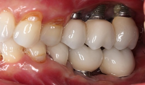 biến chứng implant 3
