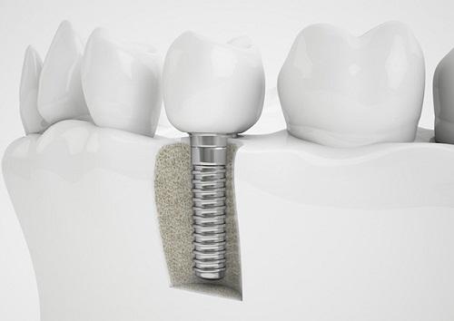 cấy ghép răng sứ implant