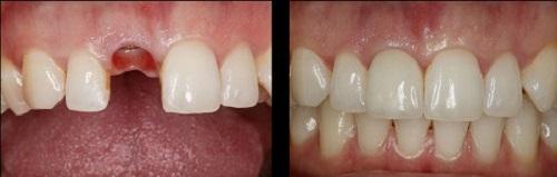 cấy ghép răng sứ implant 4