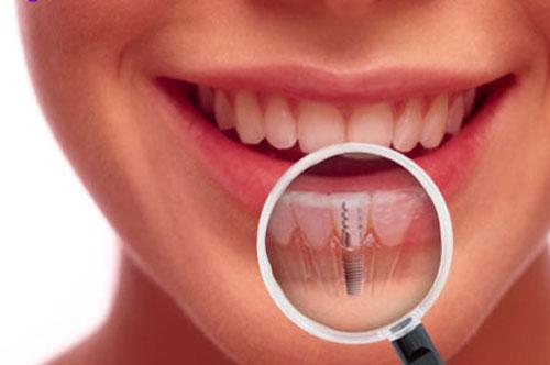 mất răng lâu năm 3
