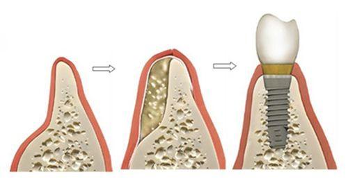 mất răng lâu năm 4