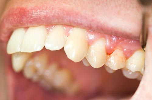 mảng bám trên răng 2