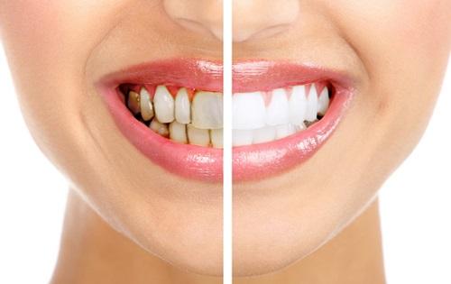 mảng bám trên răng 4
