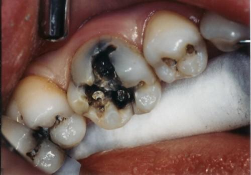 răng hàm sâu có nên nhổ
