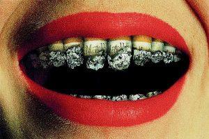 Tại sao răng có màu vàng