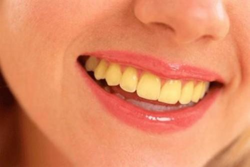 Tại sao răng có màu vàng 2