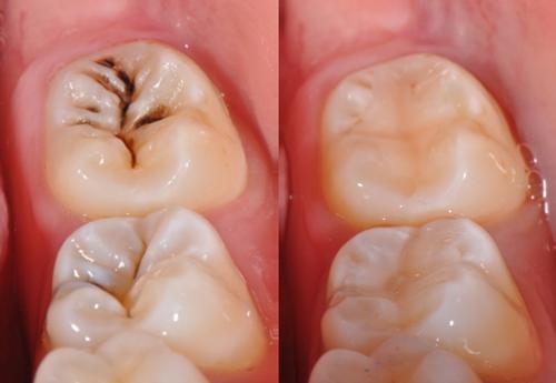 Hàn răng sâu có đau không 2
