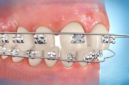 Làm khít răng thưa 2