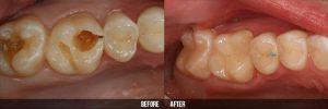 Hàn răng sâu 2