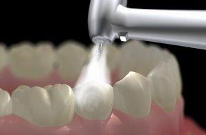 Lấy cao răng có tốt không 2?