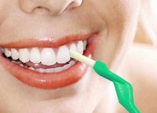 Lấy cao răng để làm gì 2?