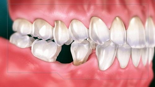 mất răng hàm số 6 phải làm sao