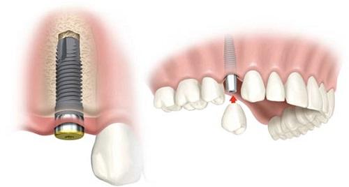 mất răng hàm số 6 phải làm sao 2