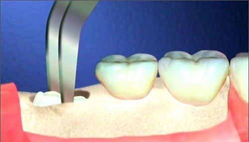 răng khôn mọc bao lâu