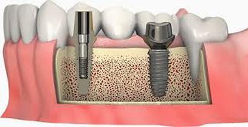 ghép xương răng 2