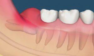 Mọc răng khôn tốt hay xấu 2?