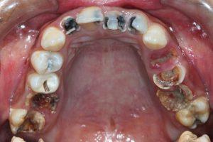 sâu răng hàm có nên nhổ