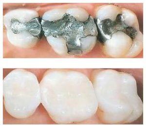 Đa sâu răng